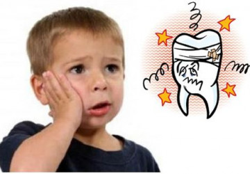 Theo Y học thì răng khôn có mấy chân? Kiến thức nha khoa