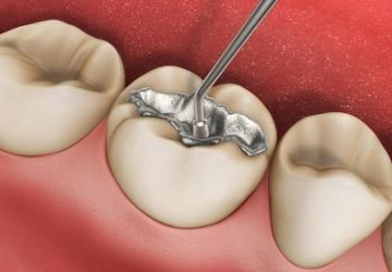 Tại sao cần trám răng? Sự thật có cần thiết phải trám răng không?