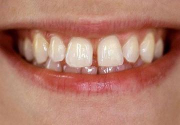 Sự thật thì răng thưa có nên bọc sứ không?