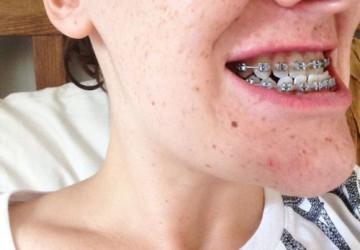 Những điều cần biết khi niềng răng móm bao lâu là hiệu quả