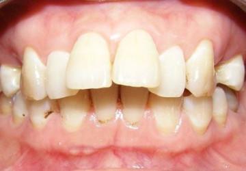 Làm sao để răng hết vẩu – Đây chính là điều bạn đang tìm kiếm