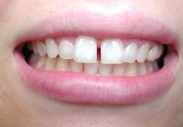 Thế nào là răng thưa và cách điều trị chuẩn không cần chỉnh