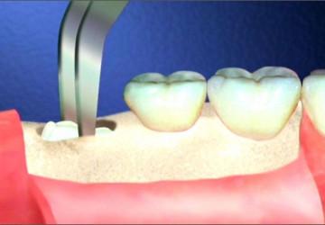 Răng khôn có nhất nhiết phải nhổ không? Nhổ thời điểm nào phù hợp?