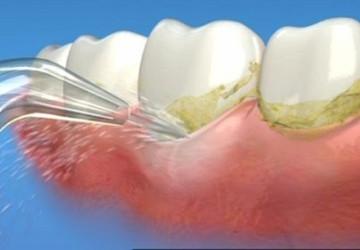 Lấy cao răng nên hay không? Hậu quả nếu không lấy cao răng