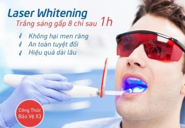 Sự thật về tẩy trắng răng bằng laser có hại không? >>> Tin Hot