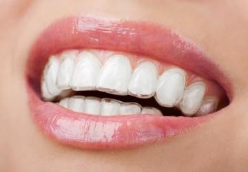 Bạn đang lo lắng không biết niềng răng có đau không?