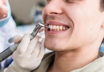 Lấy cao răng có đau không? >>> Bác sĩ tư vấn