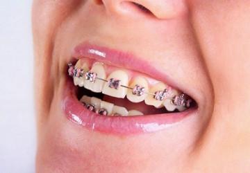 Chia sẻ phương pháp chỉnh hình răng thưa hiệu quả nhất hiện nay