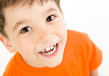 Răng sữa mọc thưa có ảnh hưởng gì không? >>> Xem nhanh