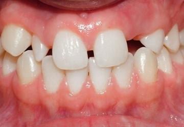 Răng cửa bị thưa phải làm sao – Câu trả lời từ các chuyên gia Nha khoa