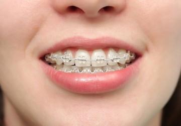 Top những cách chữa răng vẩu hiệu quả nhất hiện nay trên thế giới