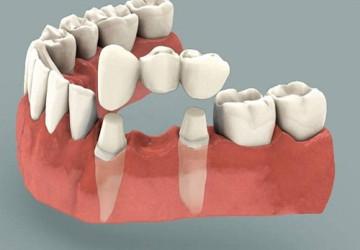 Những bí mật bạn cần biết trước khi quyết định làm cầu răng sứ