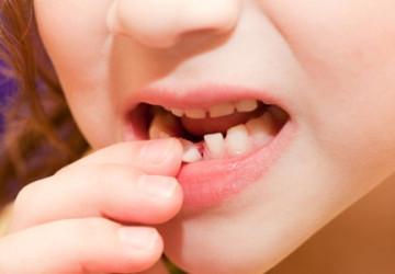 Bí quyết >>> Bạn có biết răng lung lay làm sao cho chắc lại không?