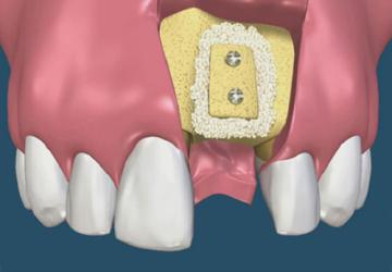 Vì sao nên ghép xương răng? Câu trả lời không thể shock hơn!